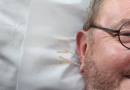 curso-online-curso-tecnico-en-acupuntura